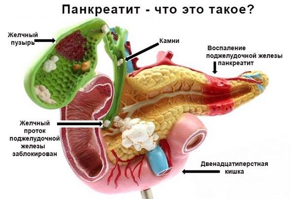 Заболевание поджелудочной железы: симптомы и лечение. диета при заболевании поджелудочной железы - панкреатит