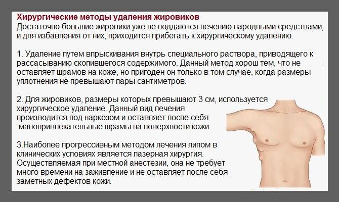 Что такое липома - последствия, причины, симптомы и лечение