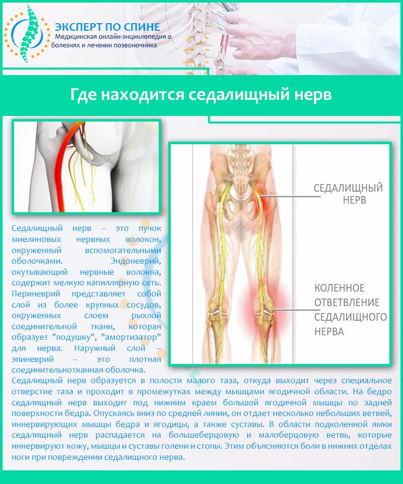 Воспаление седалищного нерва: симптомы и лечение, причины и диагностика