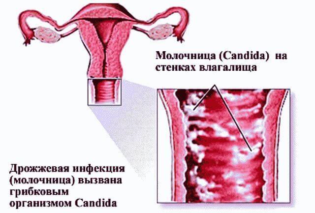 Молочница у мужчин: виды, причины, симптомы, диагностика, советы по лечению и профилактике кандидоза