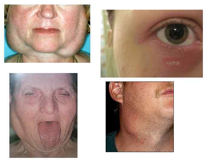 Болезнь шегрена: симптомы, диагностика, лечение