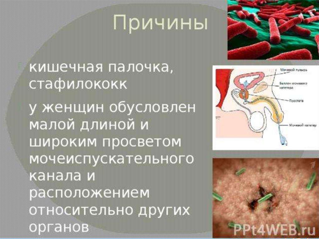 Как проявляется стафилококк у взрослых. симптомы золотистого стафилококка
