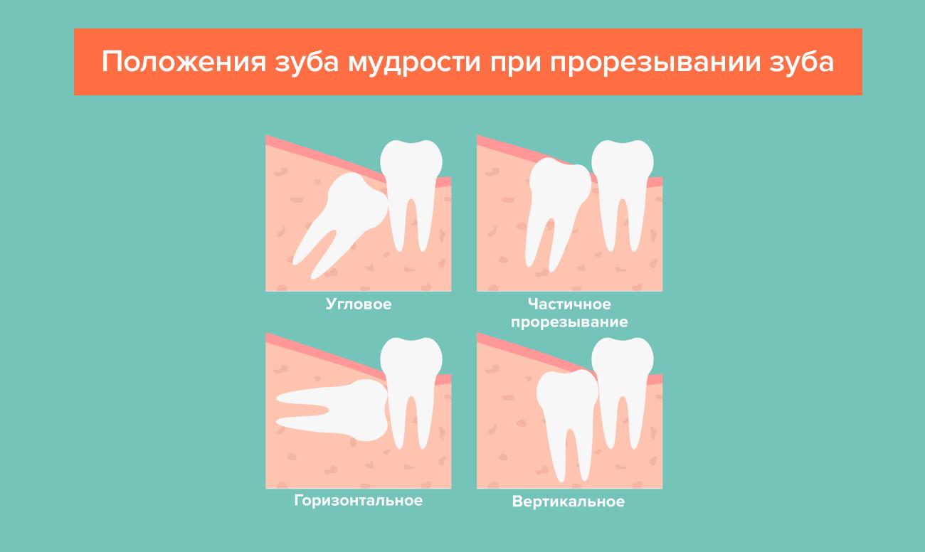 Симптомы, появляющиеся когда растут зубы мудрости, способы облегчить процесс