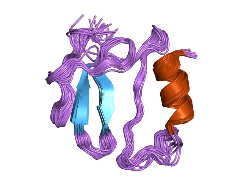 Антитела к тиреоглобулину повышены: что это значит, причины, симптомы, диагностика, лечение