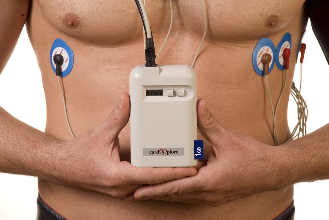 Холтер - мониторинг сердца: что это такое, описание процедуры, показания