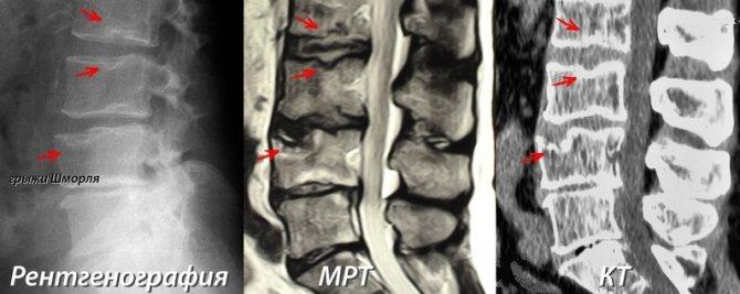 Грыжи шморля грудного отдела позвоночника: лечение, причины, симптомы, как лечить