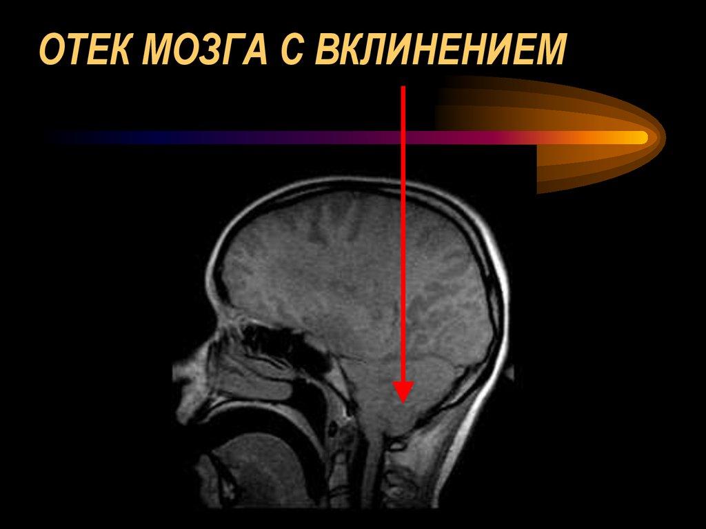 Отек головного мозга: симптомы, признаки, диагностика