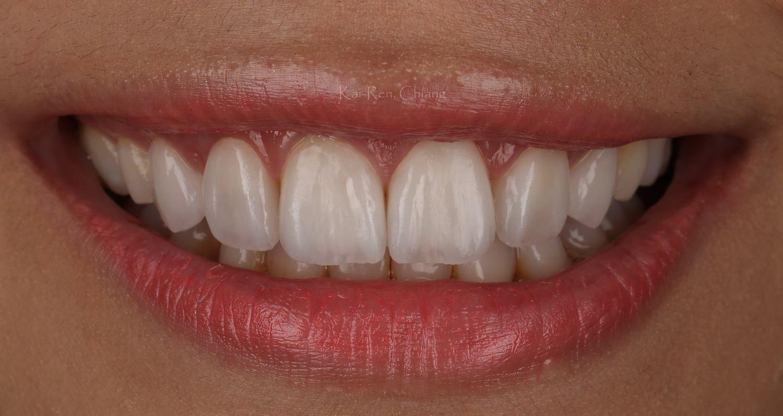 Виниры на зубы: что это такое и когда их стоит устанавливать