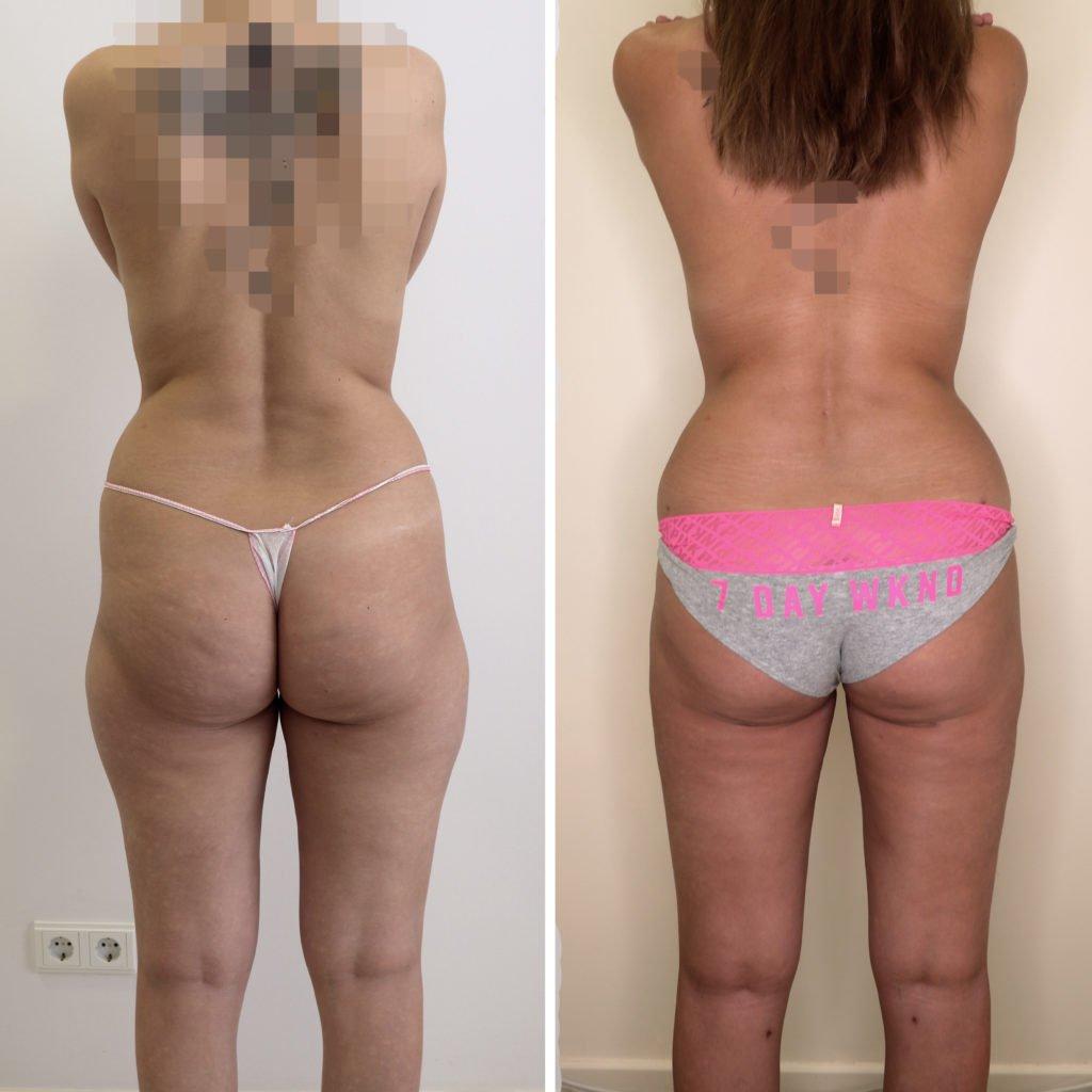 Что такое липосакция живота (лазерная и хирургическая), можно ли провести вместе с операцией по удалению жира с боков и бедер