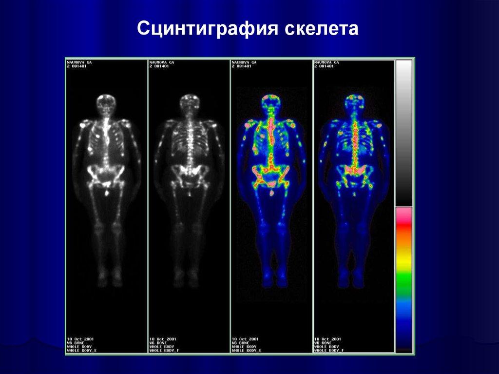 Остеосцинтиграфия при раке предстательной железы: что это такое, цены и где пройти