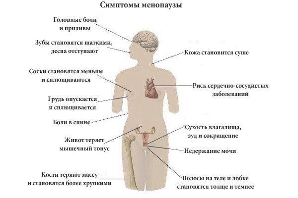 Все про постменопаузу: признаки, нормы выделений, остеопороз, народная медицина, згт
