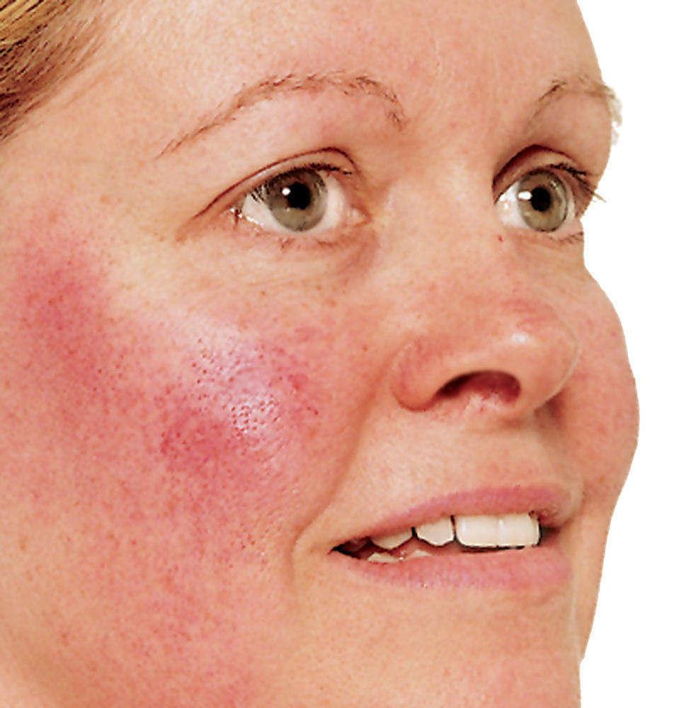 Личный опыт: что такое розацеа и эффективное лечение заболевания