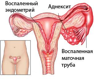 Параметрит — большая медицинская энциклопедия