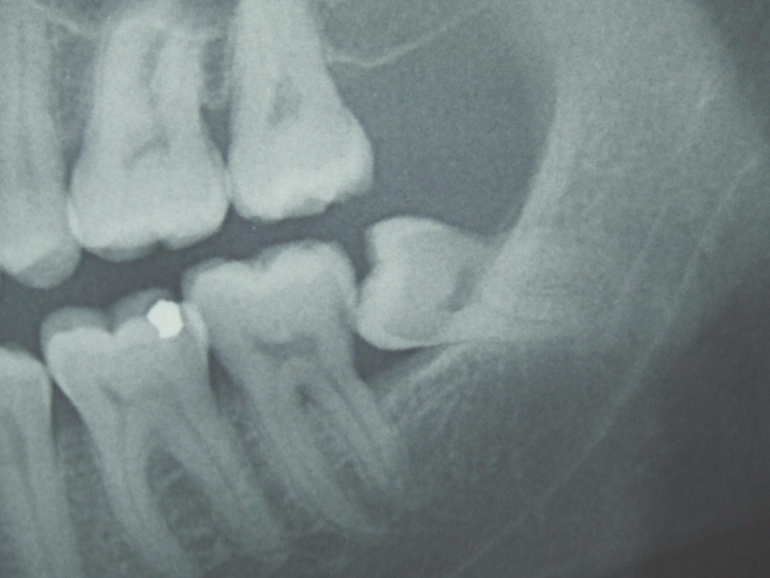 Как происходит удаление зубов мудрости?