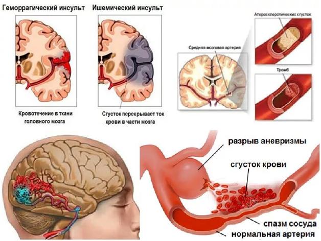 Геморрагический инсульт (гематома) головного мозга- что это такое? | инсульту нет! [нейрореабилитация]