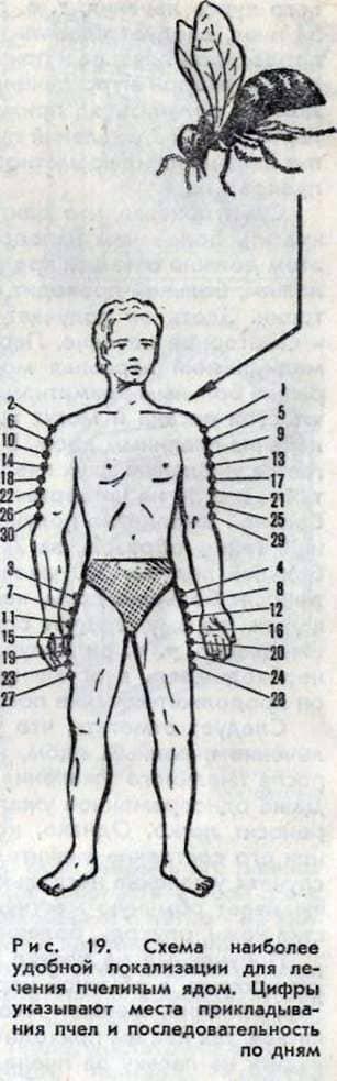 Апитерапия. показания к применению. лечение. противопоказания
