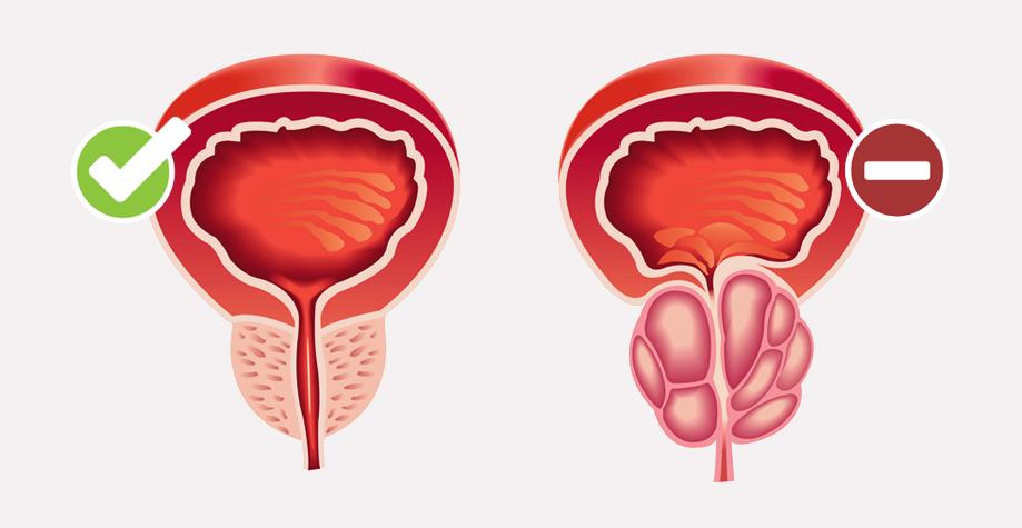 Простатит — симптомы, причины и лечение простатита