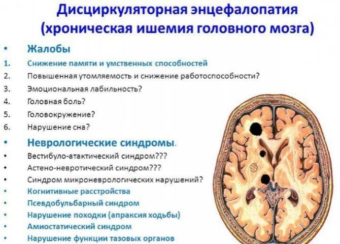 Дисциркуляторная энцефалопатия - степени заболевания, признаки на кт или мрт, как лечить и прогнозы