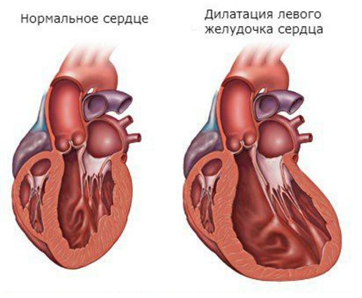 Дилатация желудочков сердца
