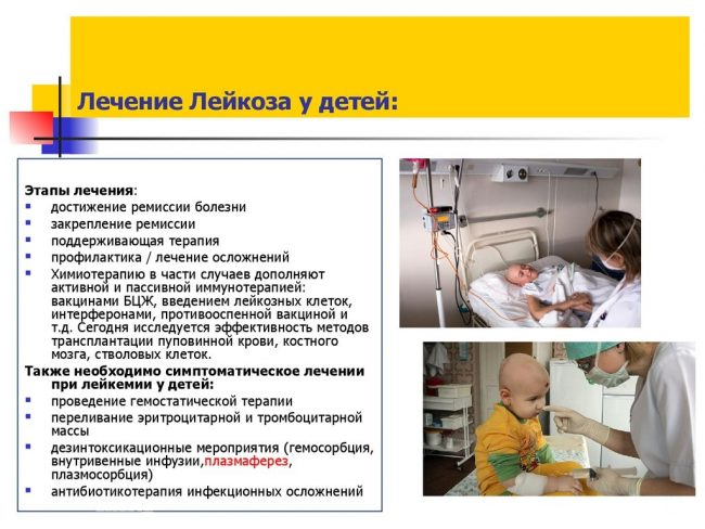 Признаки лейкемии (лейкоза) у взрослых: тревожные симптомы, ранее диагностирование заболевания