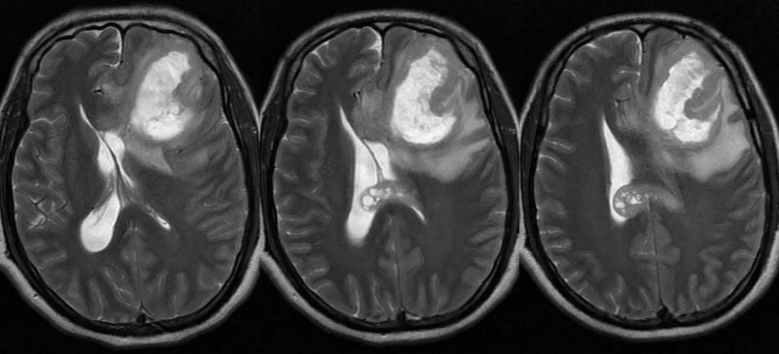 Можно ли вылечить глиобластому головного мозга и какой прогноз жизни при раке