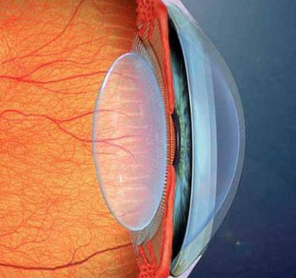 Что такое артифакия глаза, что лечит операция   fr-dc.ru
