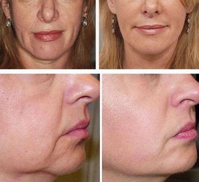 Как убрать брыли на лице: салонные методики и действенные домашние процедуры