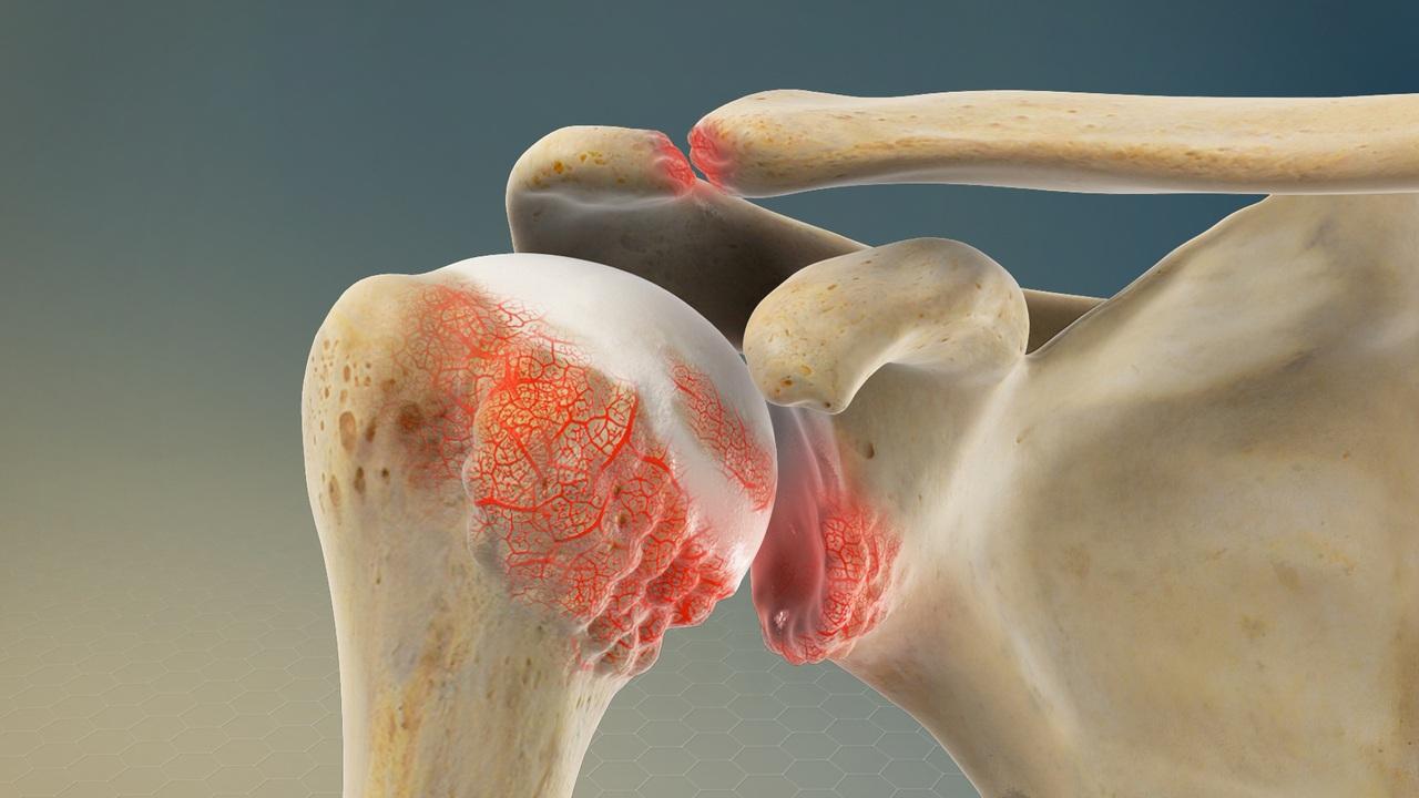 Боли в суставах (остеоартрит): что это, в чем причины, какие симптомы, диагностика, как лечиться, какие препараты применяются