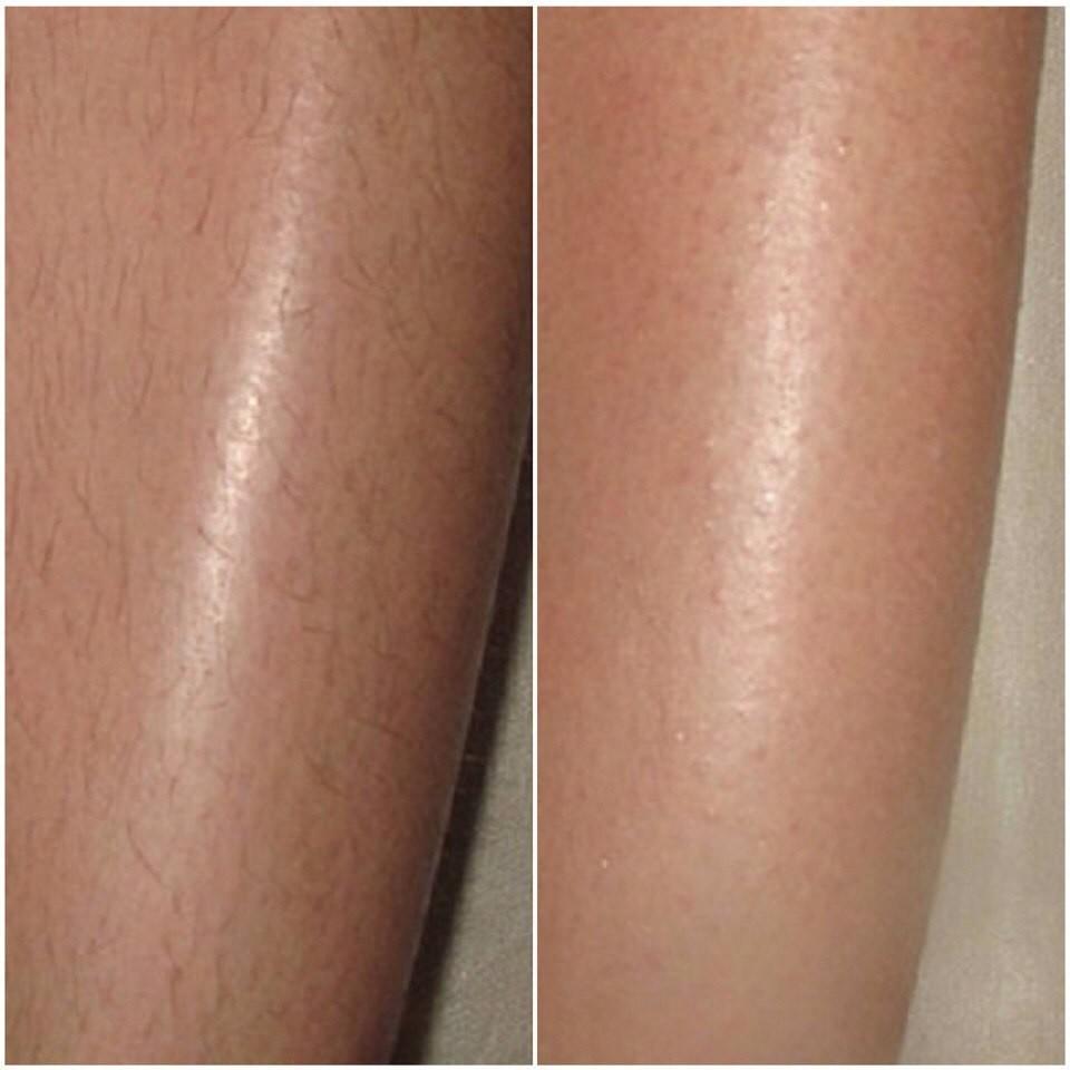 Эпиляция лазерная или фотоэпиляция: сравнение, отличия, что лучше - волосовед