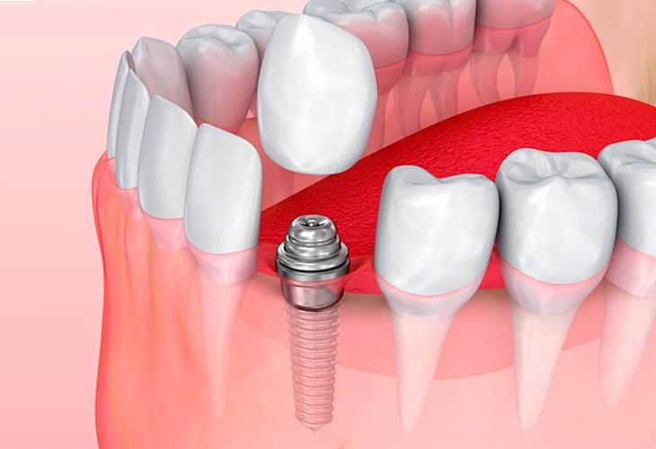 Базальная имплантация зубов: что такое, сколько стоит, сравнение и преимущества базальтовых имплантатов