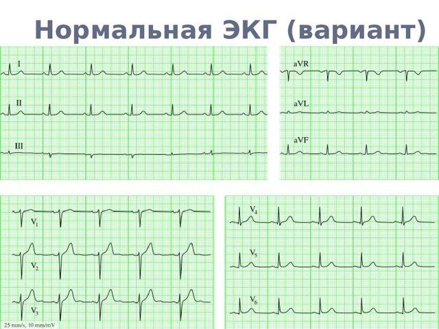 Синусовый ритм сердца: что это значит, норма у взрослых и детей