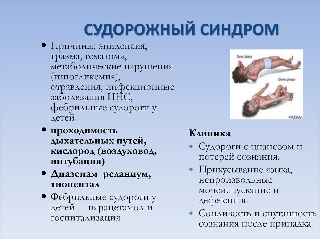 Судороги: формы, лечение, причины, симптомы, диагностика