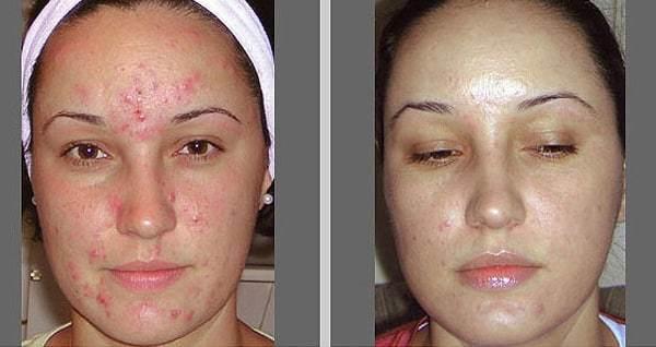 Салициловый пилинг для лица: что это такое, отзывы, фото до и после, показания к применению, противопоказания, сколько процедур нужно сделать