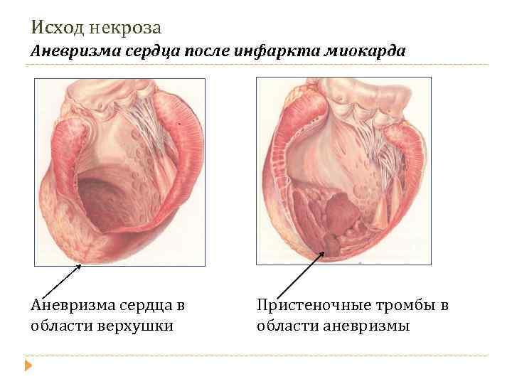 Аневризма аорты сердца - что это такое: симптомы и операция