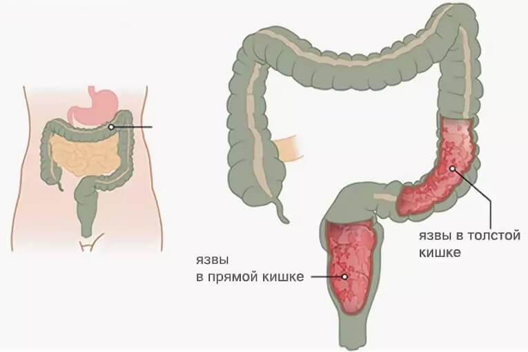 Колит кишечника - виды, формы заболевания, лечение и отзывы