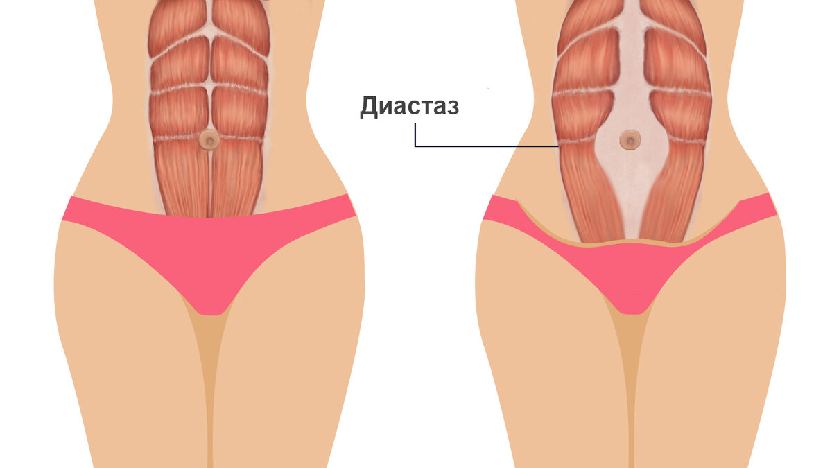 Диастаз после родов: что это, причины расхождения прямых мышц живота, как определить самостоятельно, признаки, лечение, фото