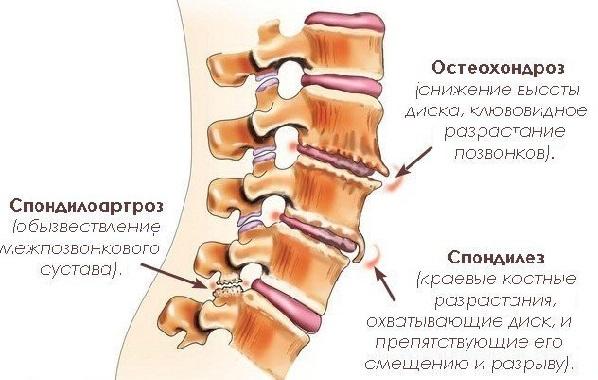 Спондилоартроз грудного отдела позвоночника. что это за болезнь: причины, симптомы