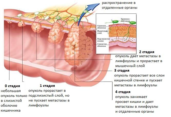Какими симптомами сопровождаются полипы в матке: чем опасно заболевание и отзывы женщин
