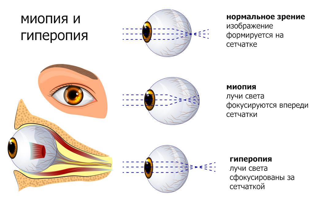 Дальнозоркость зрения — что это такое, симптомы и причины гиперметропии глаз