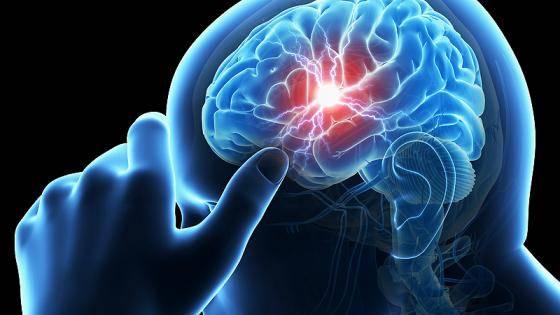 Стволовой инсульт: симптомы, лечение и реабилитация