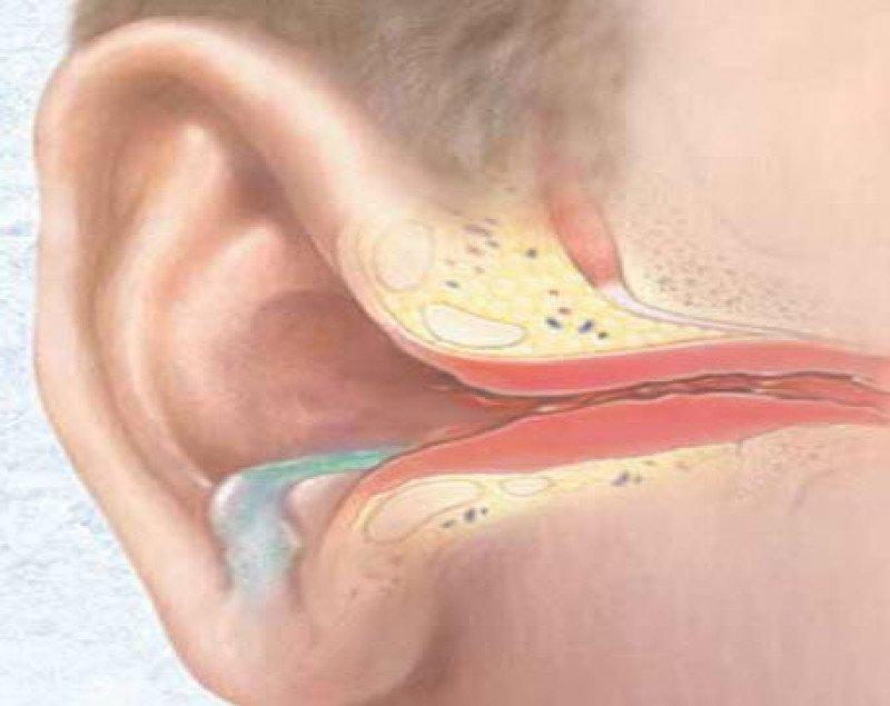 Отит уха: виды отита и причины развития