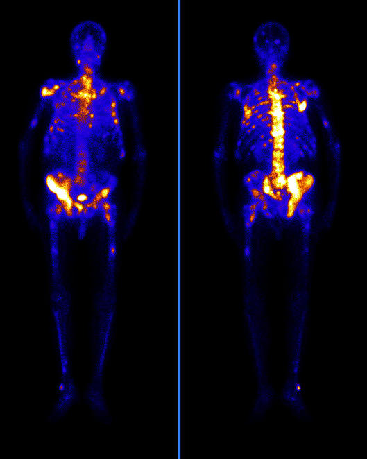 Сцинтиграфия костей скелета: показания, подготовка