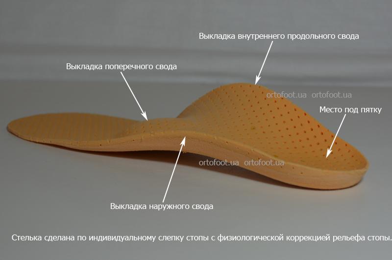 Все о супинаторах для обуви