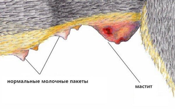 Мастит при грудном вскармливании, признаки, симптомы и лечение мастита при гв