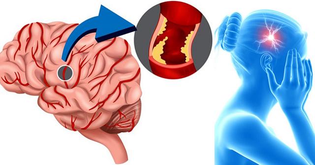 Стволовой инсульт: прогноз выздоровления, что это такое, возможно ли выздоровление