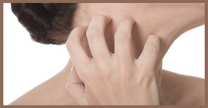 Мацерация кожи, что это такое, код мкб 10, лечение - ezavi.ru