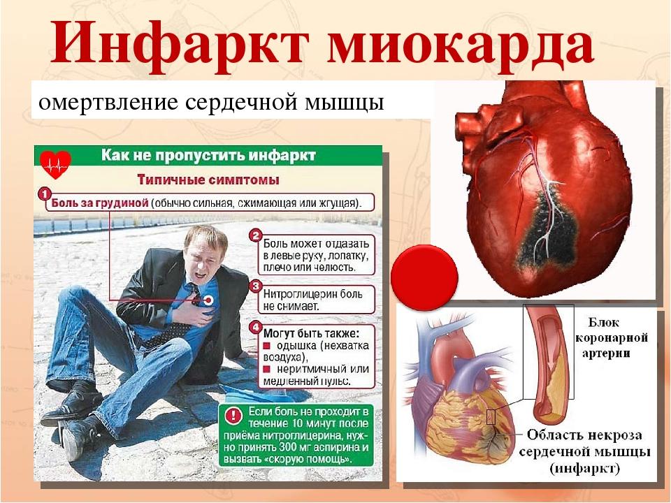 Инфаркт миокарда: первые признаки, как избежать тяжелых последствий? | здорова и красива