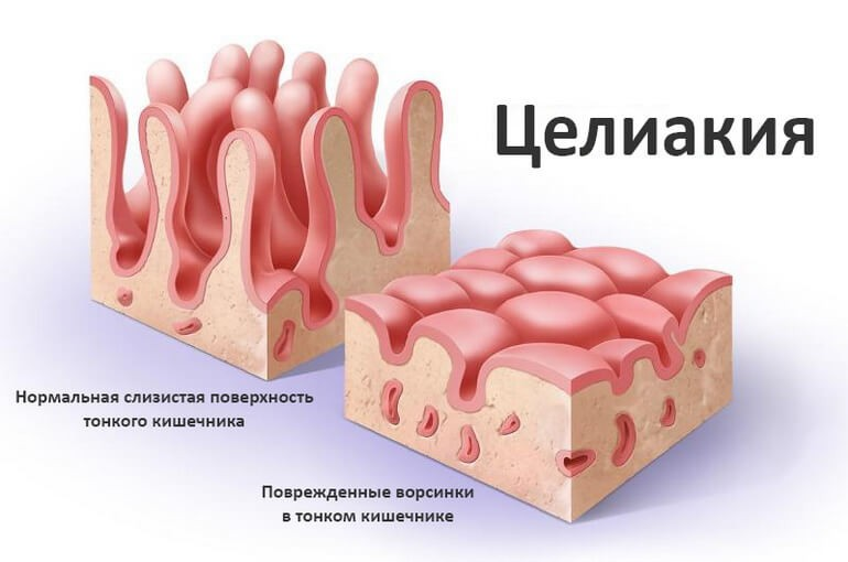 Целиакия: симптомы у взрослых, диагностика и лечение