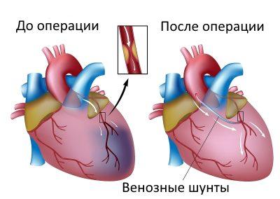 Шунтирование: что такое шунтирование сердца и сосудов, когда необходима акш и когда противопоказано