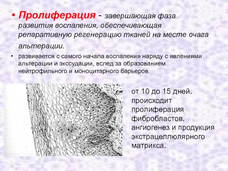 Все про эндометрий пролиферативного типа